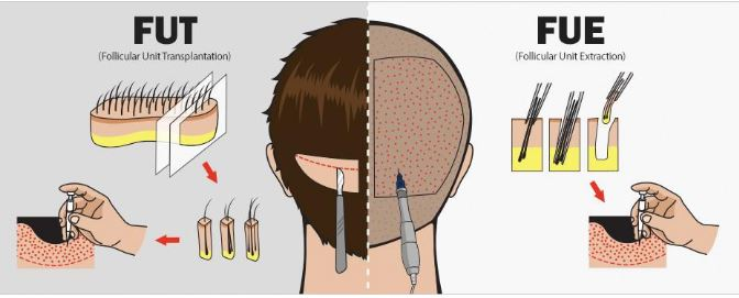 Hair-Transplant-Method